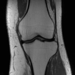 Coronal spin density weighted MRI of the knee.