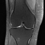 MRI of the knee.