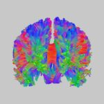 Radial diffusion spectrum imaging tractogram of the human brain.