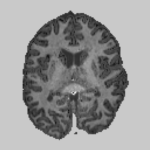 Brain diffusion parameter map obtained with the robust DKI estimator. map
