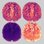Brain diffusion-weighted image and SNR data, before and after denoising with MPPCA.