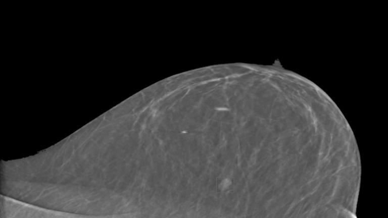 A digital breast tomosynthesis slice.