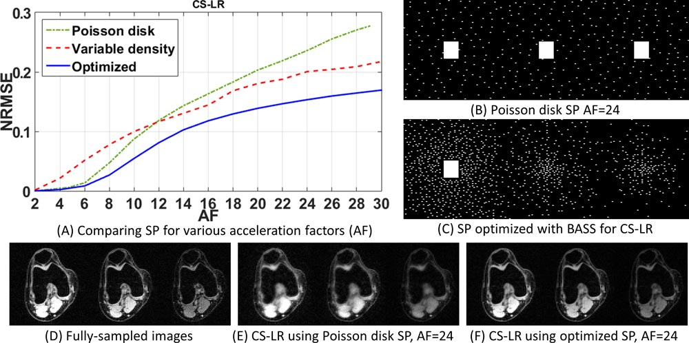 An illustration of results obtained through bias-accelerated subset selection for optimizing the sampling pattern in accelerated MRI.