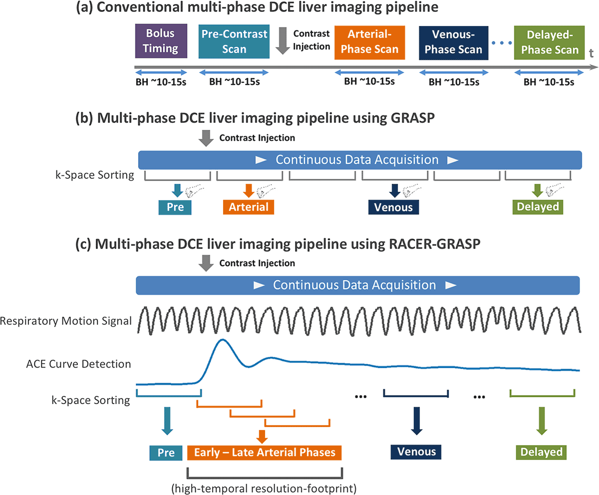 A comparison of dynamic contrast enhanced (DCE) workflows for liver MRI.