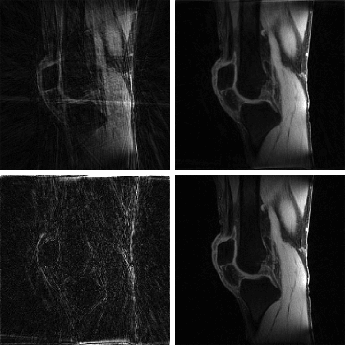 Examples NUFFT and MFISTA image reconstructions from undersampled MRI data, NUFFT reconstruction from fully sampled data, and comparison between the fully sampled NUFFT and undersampled MFISTA-VA reconstruction.