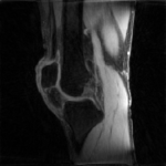 An accelerated MRI of the knee reconstructed with MFISTA-VA.